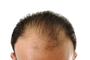 man with hair loss